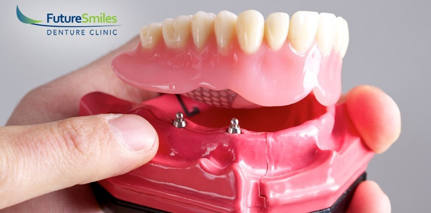 Future Smiles Denture Clinic Calgary Why Denture Implants Might Not Be The Right Solution For You