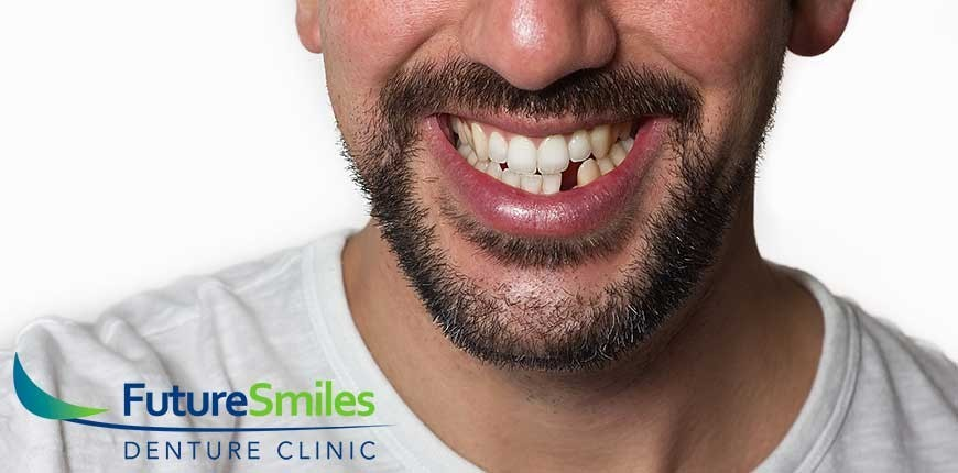Future Smiles Vlad Dumbrava 5 Factors That Contribute To Tooth Loss