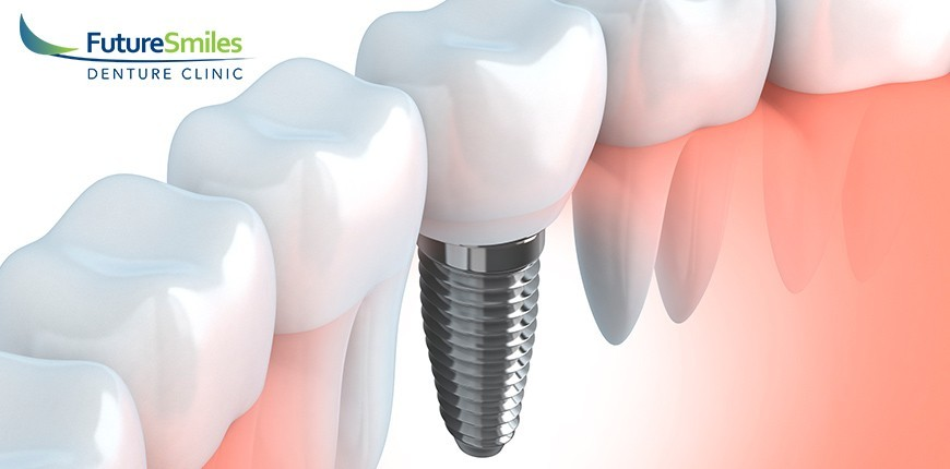 Calgary Denture Implant Maintenance