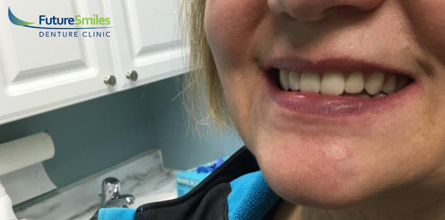 Future Smiles - Patient Case #5
