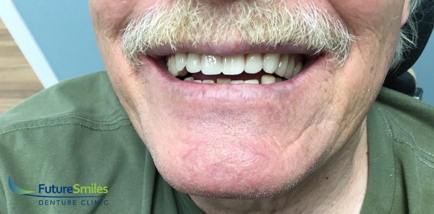 Future Smiles - Patient Case #4