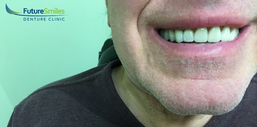 Calgary Denture Repair And Maintenance