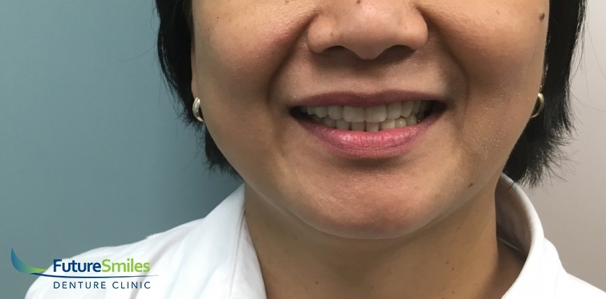 Calgary old worn denture repair