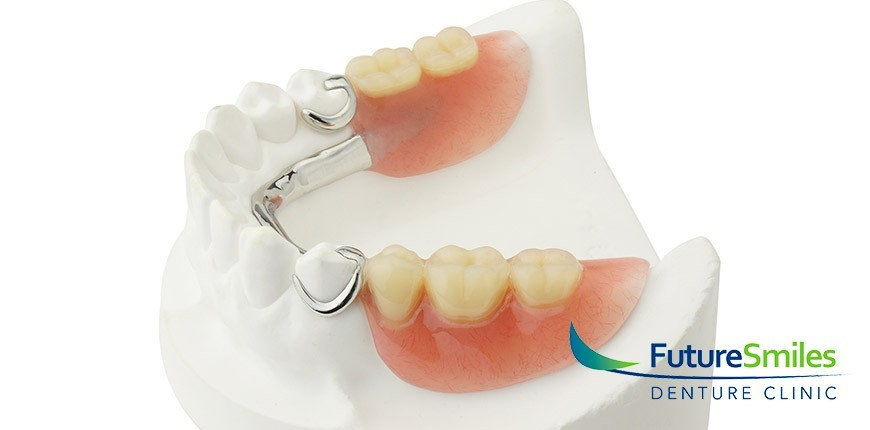 Full Dentures versus Partial Dentures