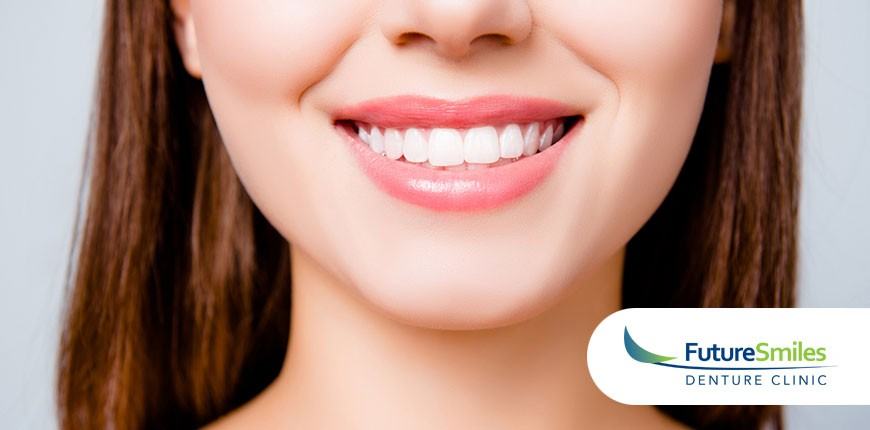 Dental Implants, complete denture Calgary, denture implants Calgary, denture cost Calgary