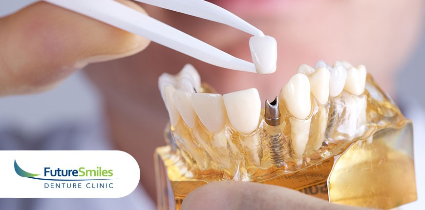 How to Take Care of Your Dental Implant At Home