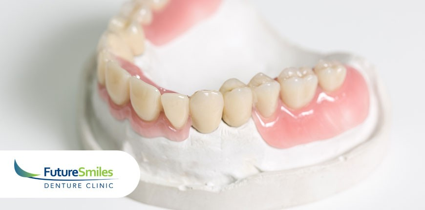 Everything You Need to Know About Denture Implants