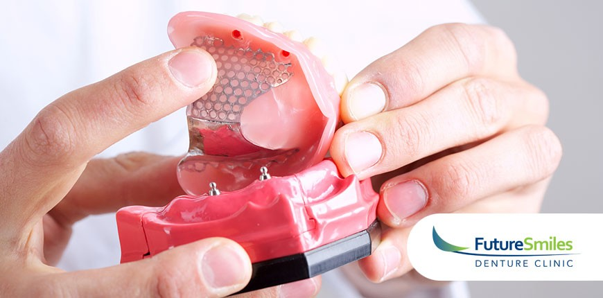 The Difference Between Dental Implants and Denture Implants