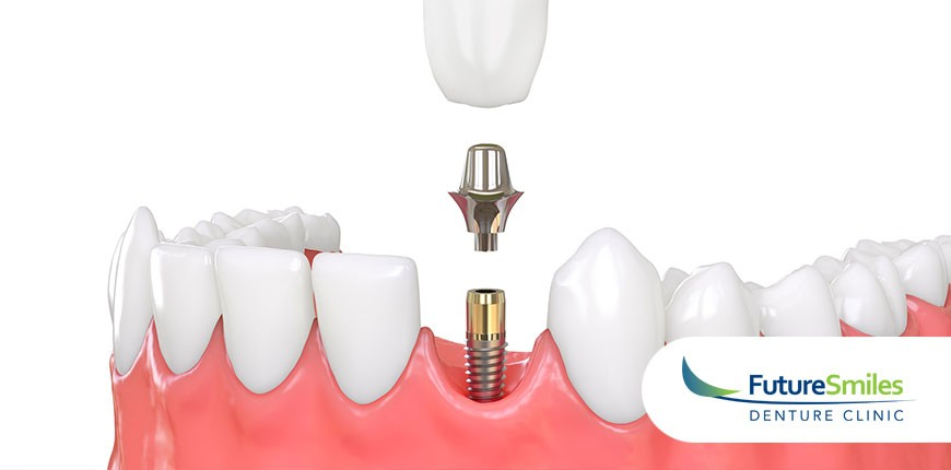 Do I Need Life-Altering Dental Implants or Denture Implants? How to Know