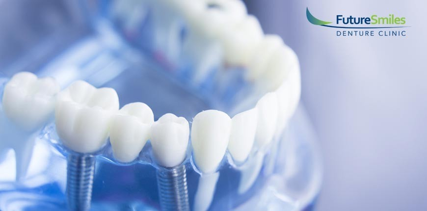 4 New Tooth Implant Technologies That Can Benefit You