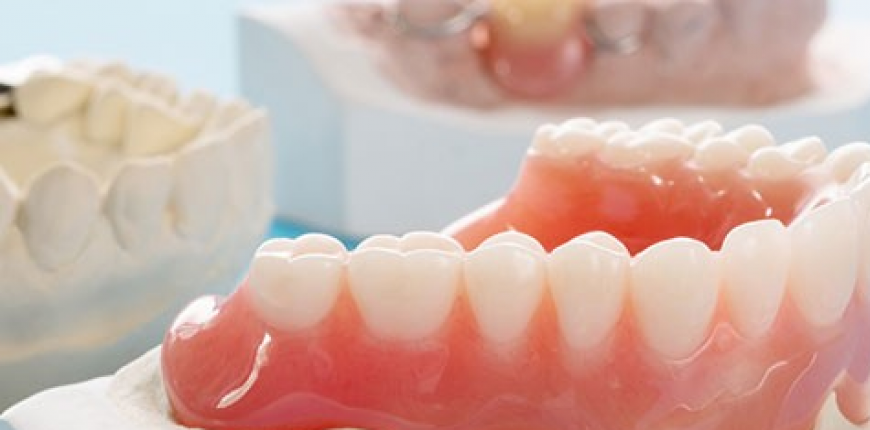 Dentures in Calgary: The Full Story on Full Dentures