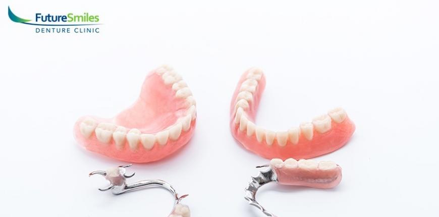 Partial Dentures Calgary
