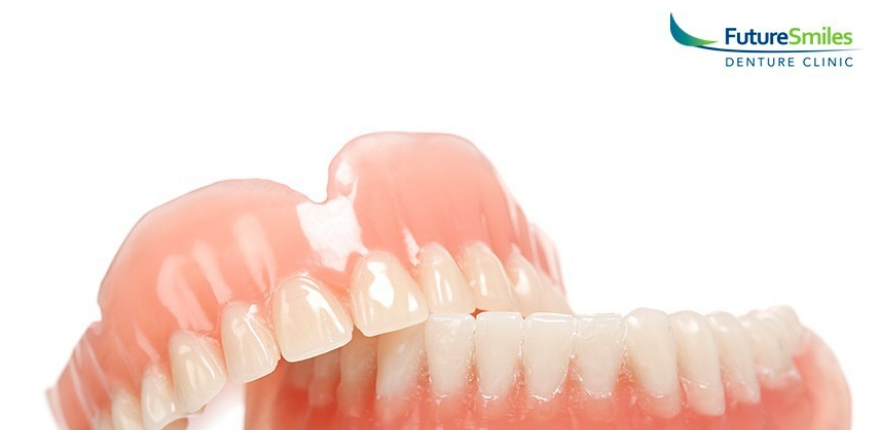 5 Things You Should Know Before Getting Dentures
