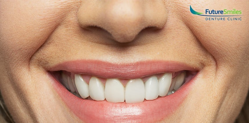 Denture Implants Calgary